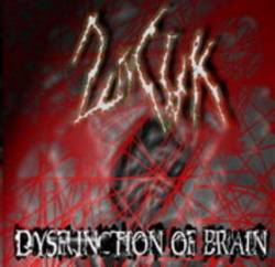 2nCuk : Dysfunction of Brain